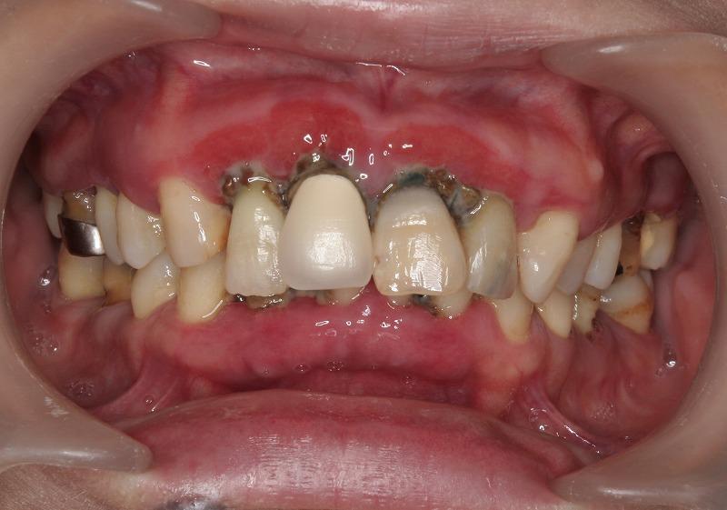 ①術前 プラークコントロール不良、歯周炎