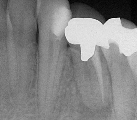 ①術前 下顎小臼歯の根尖病変 未処置根管有