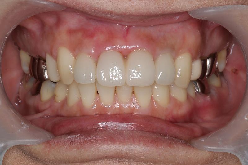 ⑤術後4前歯    オールセラミック