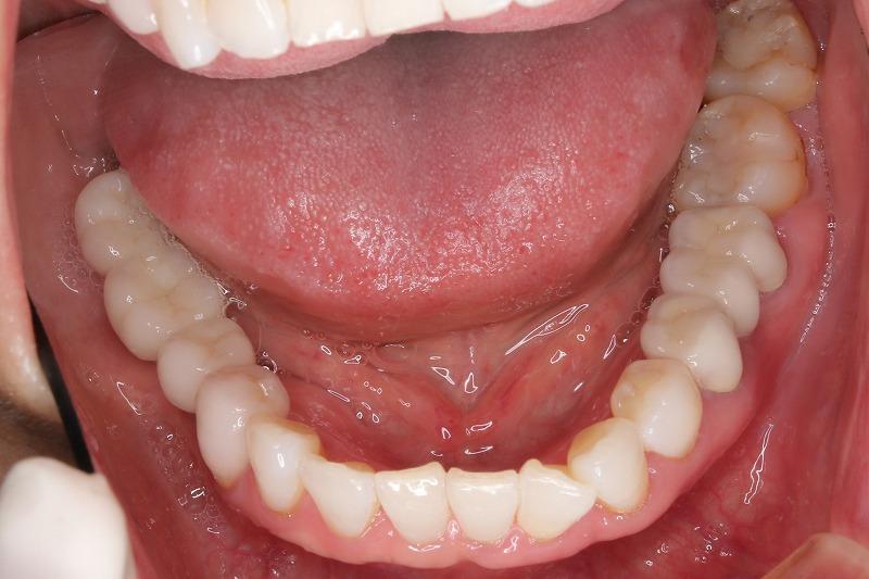 ⑦下顎インプラント術前