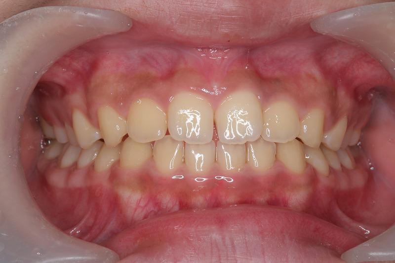 ④トレーナー使用により歯並びの改善とともに口呼吸、舌の突出、間違った嚥下などの口腔習癖を改善します。