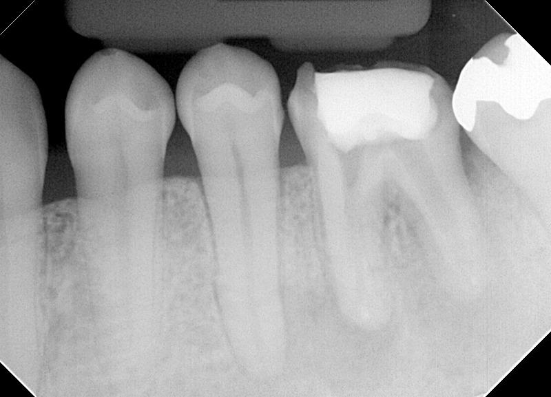 ①術前 下顎大臼歯小豆大の根尖病変