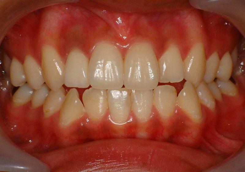 ①術前 事故にて前歯破折