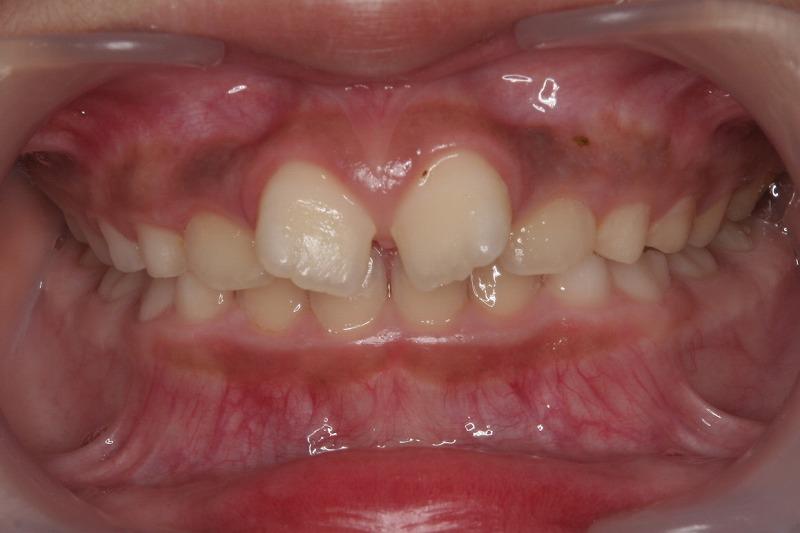 ①術前 前歯部翼状捻転