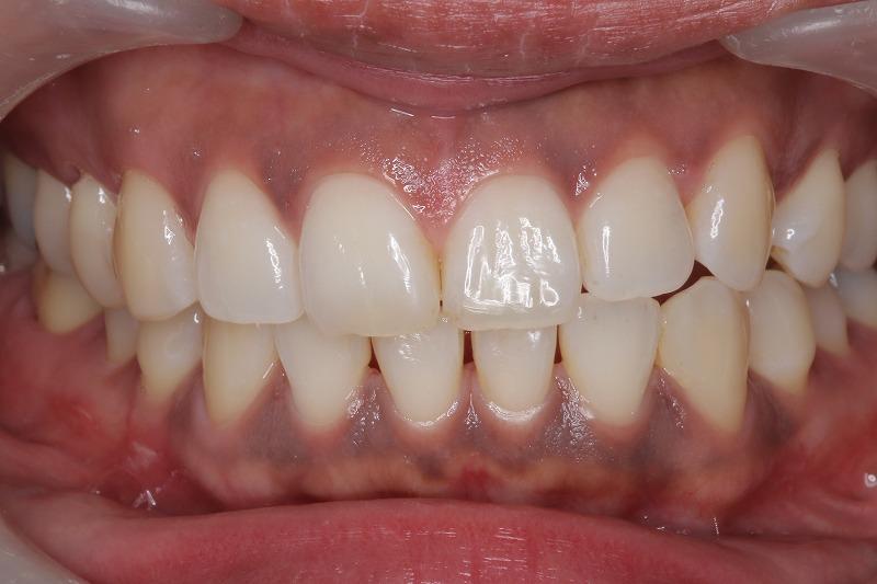 ①歯肉のメラニン沈着術前 スモーカーは要注意です