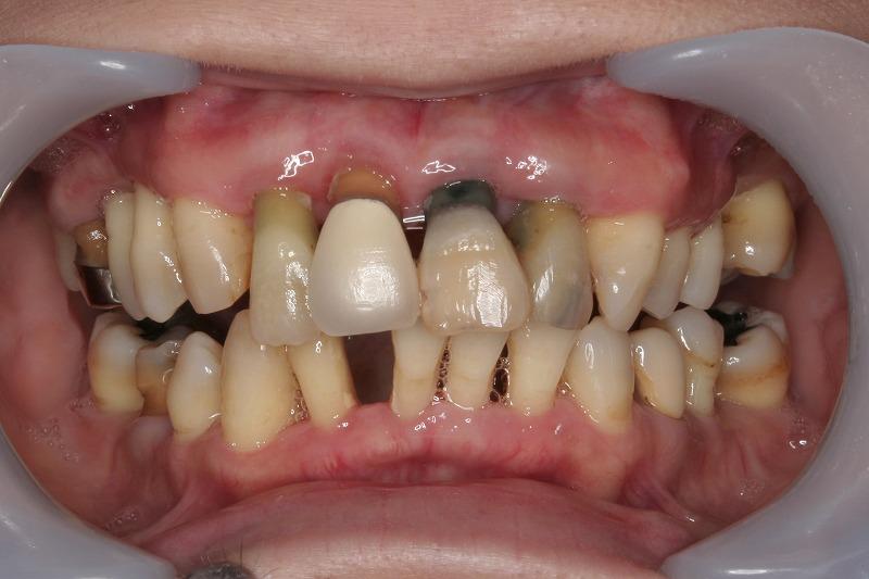 ③大量の歯石