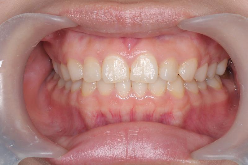 ①術前 プラークコントロール不良のため歯肉炎